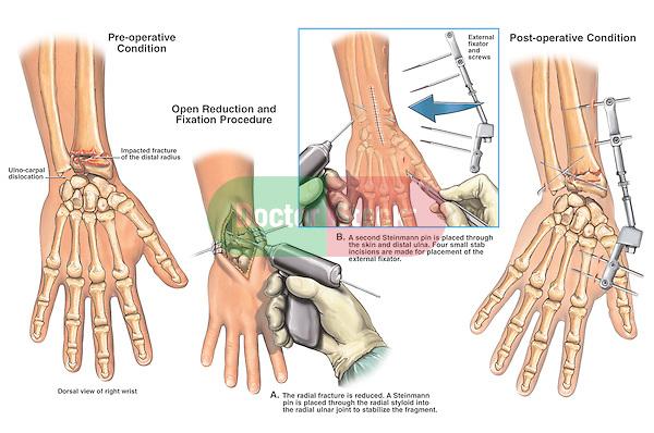 steinmann pin insertion technique pdf