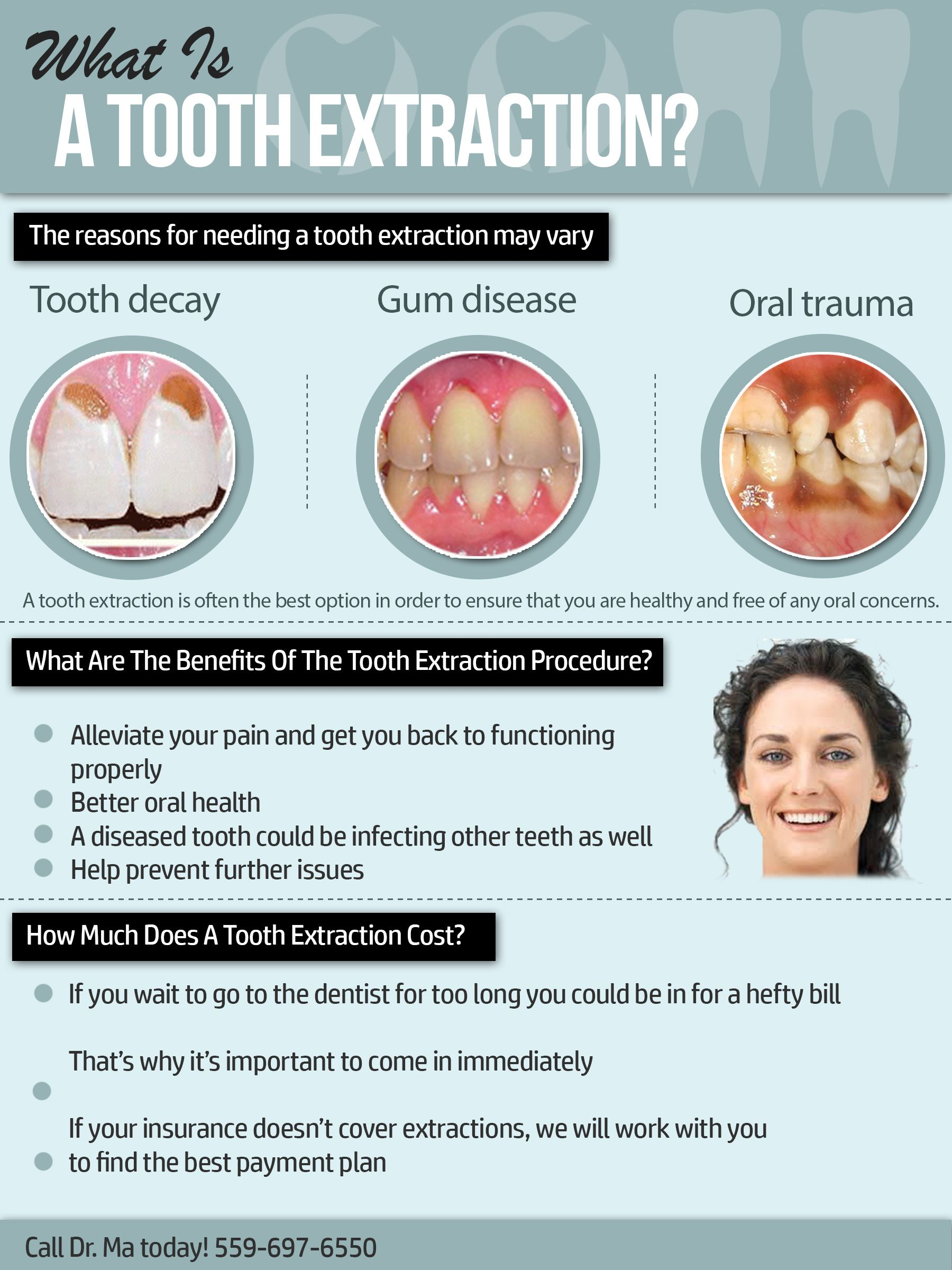 tooth extraction post op instructions